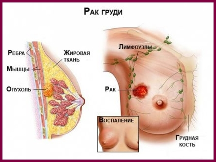 Stage 3 breast cancer operable