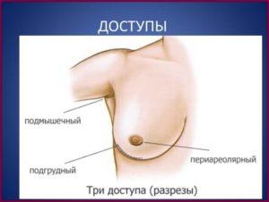 Как устанавливаются грудные импланты?