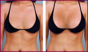 Фото после увеличения груди своим жиром