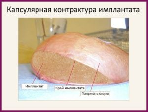 Капсулярная контрактура импланта после маммопластики