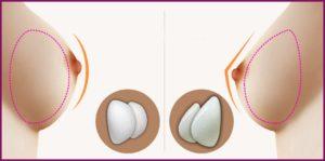 Круглые или анатомические импланты