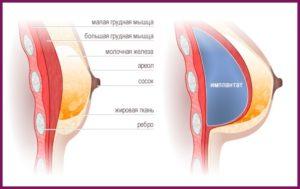 Молочные железы после увеличения