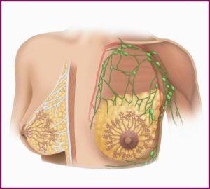 Можно ли увеличивать грудь при мастопатии молочных желез
