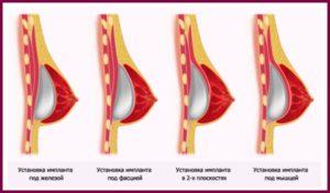 Расположение импланта