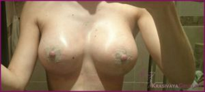 Рубцы после маммопластики