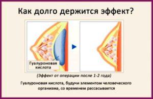 Сколько рассасывается гиалуроновая кислота
