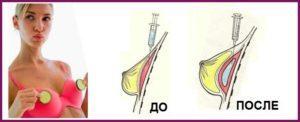 Увеличение груди гиалуроновой кислотой до и после