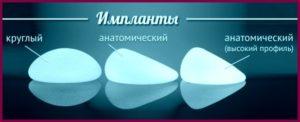 Грудные анатомические импланты
