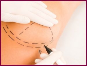 Как подтянуть грудь нитями?