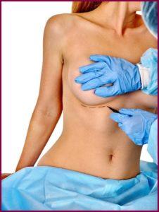 Операция по реконструкции груди