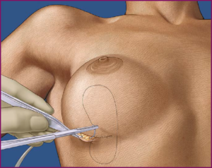 Методы эндопротезирования молочных желез