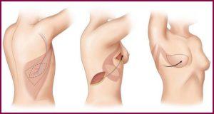 Реконструктивная маммопластика
