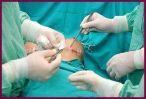 Реконструктивная маммопластика в пластической хирургии