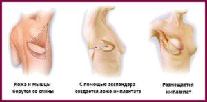 Установка импланта эндоскопом