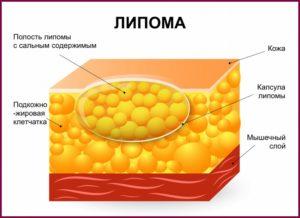 Что такое липома молочной железы?