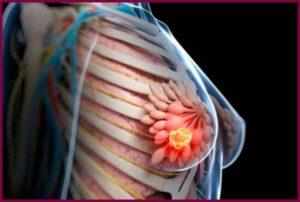 Как выглядит рак молочной железы?
