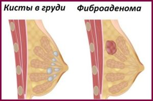 киста грудины у женщин фото