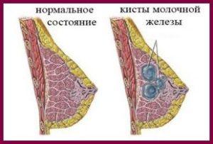 Лечение кисты молочной железы