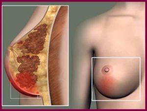 Причины заболевания молочных желез