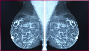 Снимок маммографии груди