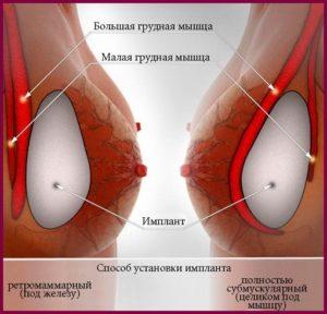 Способы установки имплантов