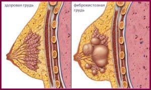 Диффузный фиброаденоматоз