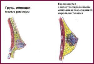 Гинекомастия у женщин