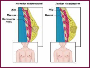 Истинная гинекомастия
