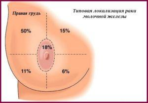 Локализация рака в груди