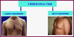 Односторонняя и двусторонняя гинекомастии