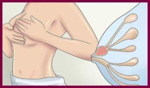 Уплотнения в молочных железах при кормлении