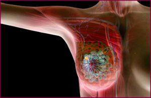 Гипоплазия грудных желез
