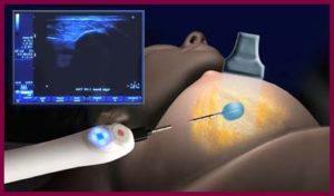 Как делают биопсию молочной железы