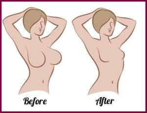 На сколько размеров можно уменьшить грудь?