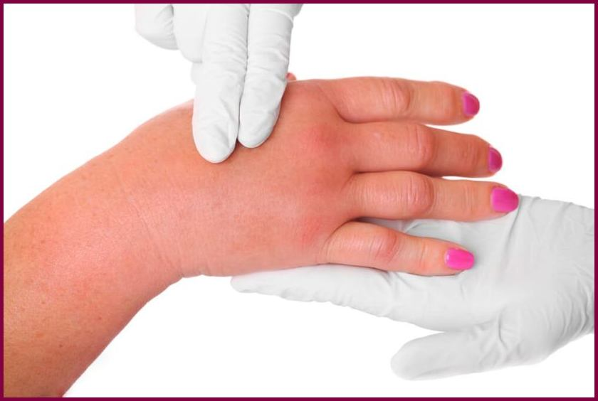 Рожистое воспаление руки при лимфостазе лечение