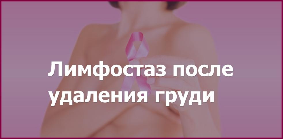 Лимфостаз после резекции молочной железы