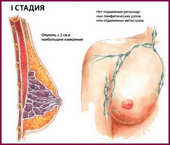 Рак молочной железы 1 степени