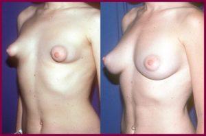 Тубулярная грудь до и после