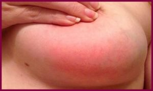 Симптомы мастита у кормящей матери