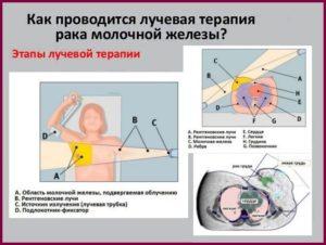 Как проводится лучевая терапия при раке молочной железы?