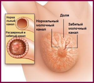 Мастит груди