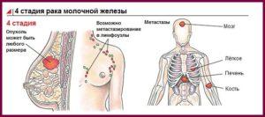 4 стадия рака грудной железы у женщин