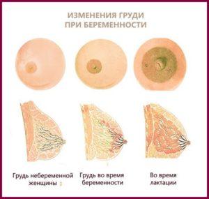 Боль в груди во время беременности