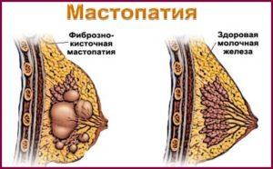 Чем опасна мастопатия?