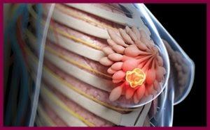 Фиброаденома молочной железы удалять или нет?