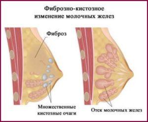 Фиброзно-кистозное изменение молочных желез