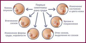 Признаки рака грудной железы у женщин