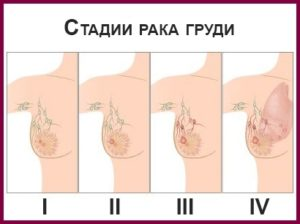 Стадии рака грудной железы у женщин
