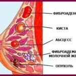 Относится ли узловая мастопатия к онкологии?