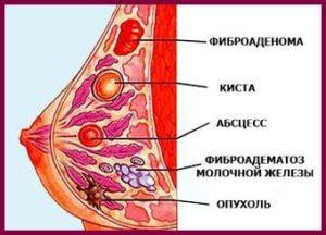 Узловая мастопатия относится к онкологии или нет?